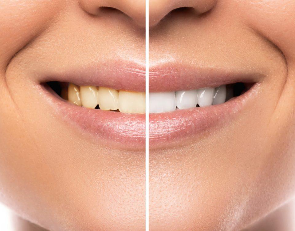 Skuteczne wybielanie zębów domowymi sposobami albo lampą beyound